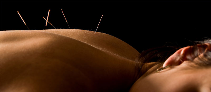 Acupuncture treatment at Saltuary